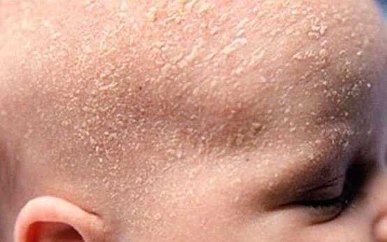 Себорейный дерматит у новорожденных и малышей