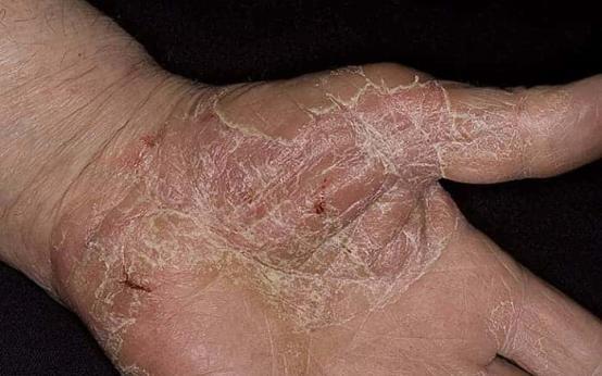 Чем лечить сухую экзему на руках и пальцах?