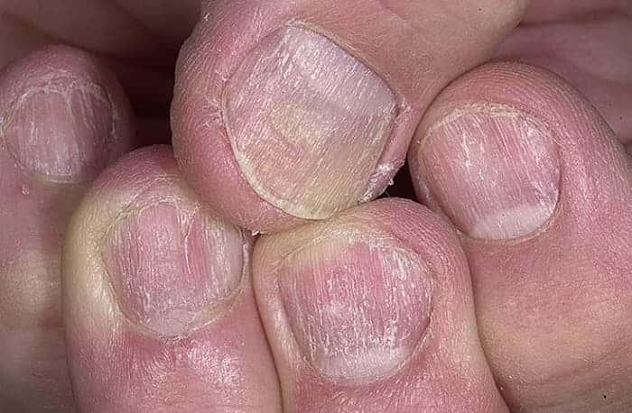 Бородавки плоские медикаментозное лечение