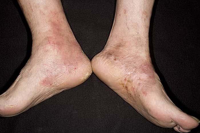 Как и чем лечить экзему на ногах