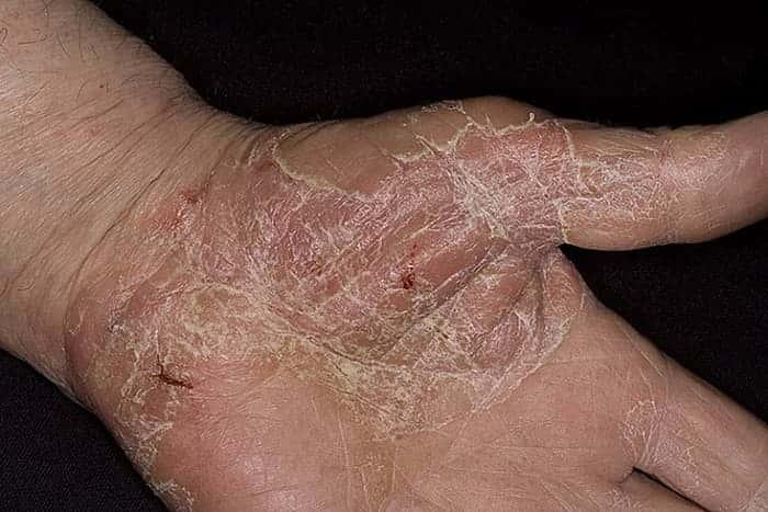 Мокрая экзема лечение антибиотиками