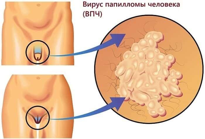 Папиллома 18 тип лечение