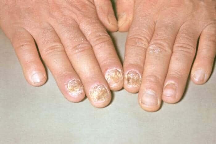 Псориаз ногтей форум