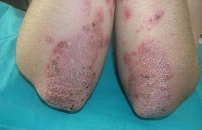 Болит большой палец на ноге около ногтя лечение