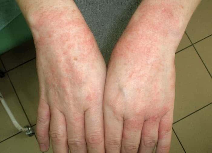 Хвороби шкіри рук