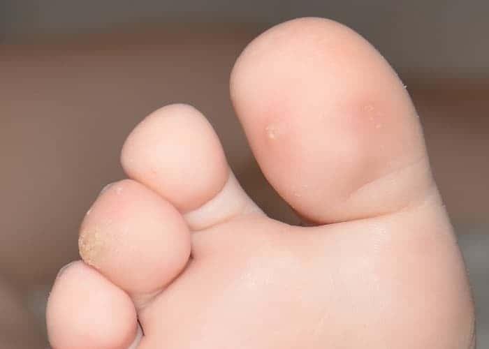 Бородавка на пальце ноги у ребенка