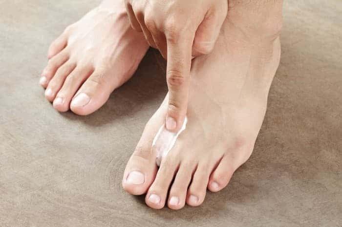 Мазь от экземы на ногах