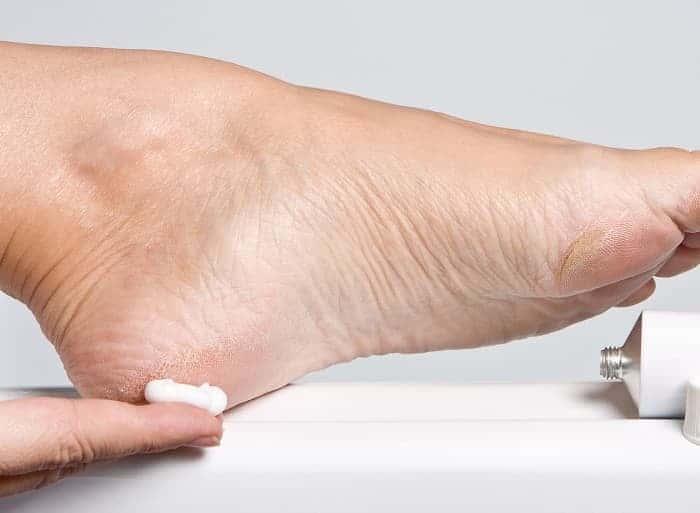 Экзема на ногах лечение морской солью