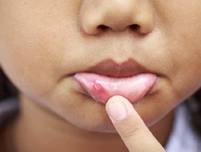 Герпес на внутренней стороне губы: как лечить на губе во внутренней части?