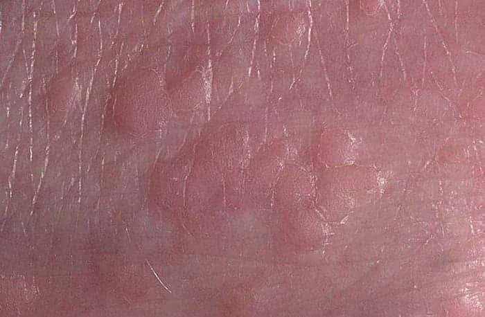 Плоские бородавки на коже ребенка