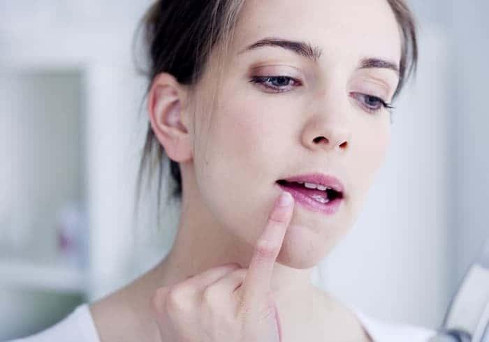 Пятна на губах после герпеса
