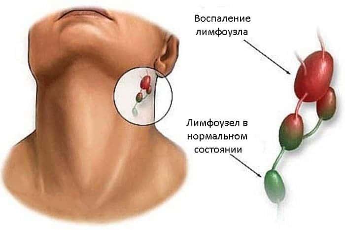 Чем лечить грибок ушей у человека