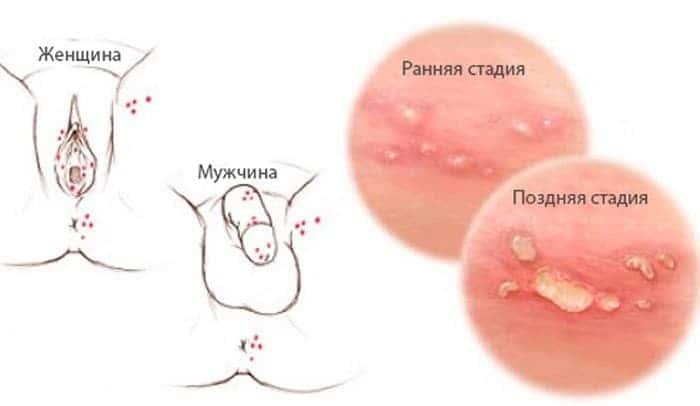 Герпес на половых губах