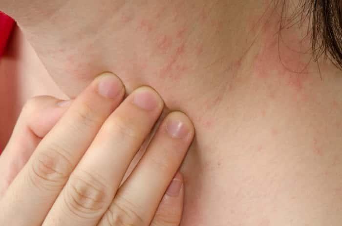 Аллергический дерматит с зудом