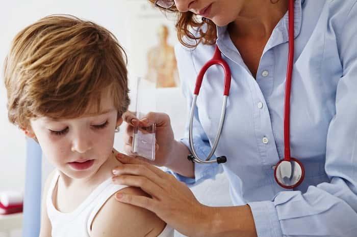 Лечение папилломы у детей