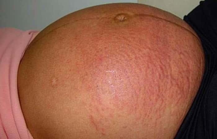 Аллергическая реакция у беременной 96
