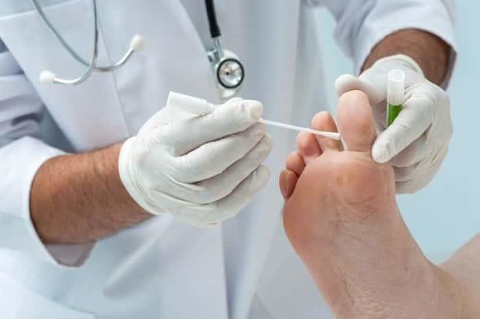 Грибок стопы лечение клотримазол