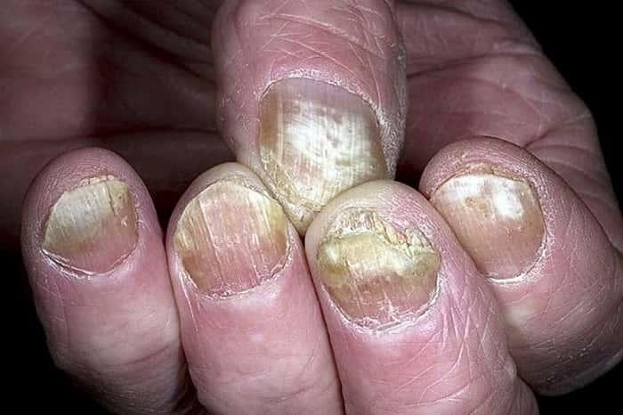 Запущенная форма грибка ногтей