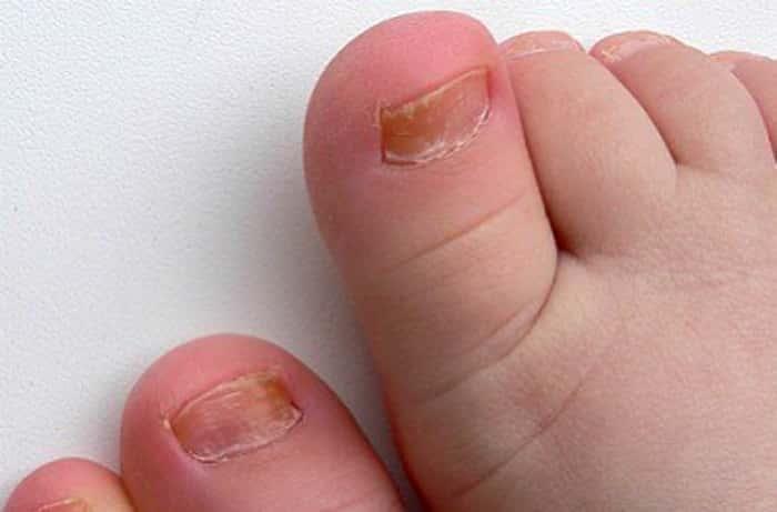Лечение грибка ногтей на ногах у младенцев