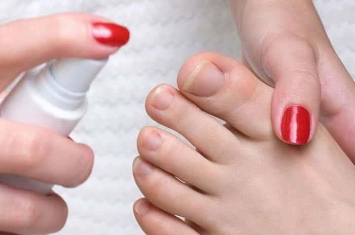 Лечение грибка ногтей на ногах