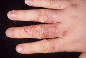 Дерматофития кистей рук