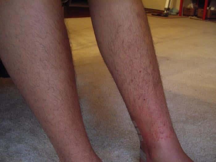 Потница на ногах