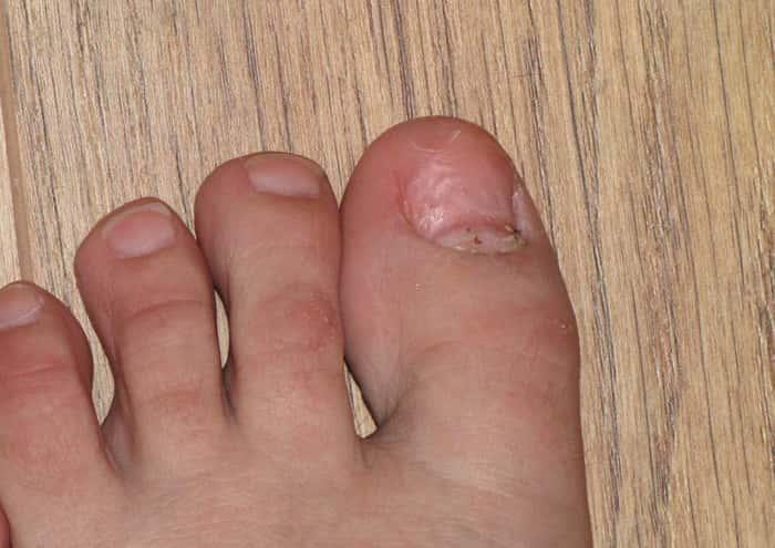 Слез ноготь на большом пальце ноги как лечить