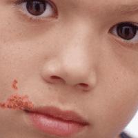 герпес около губы ребенка