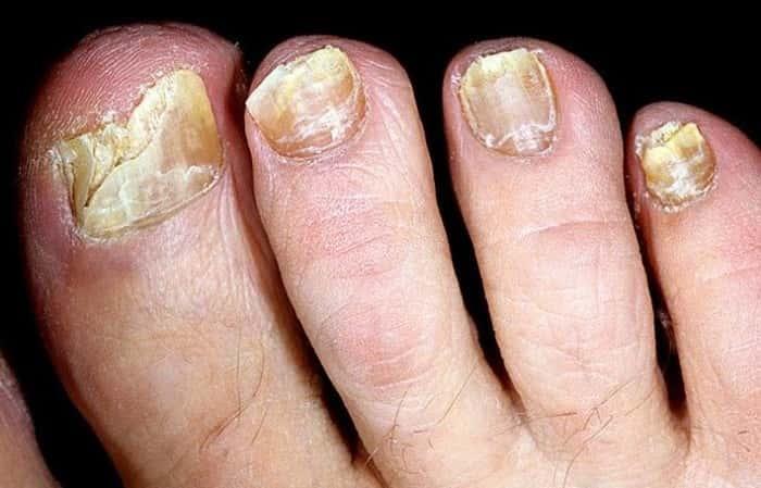 Грибок ногтей пути заражения