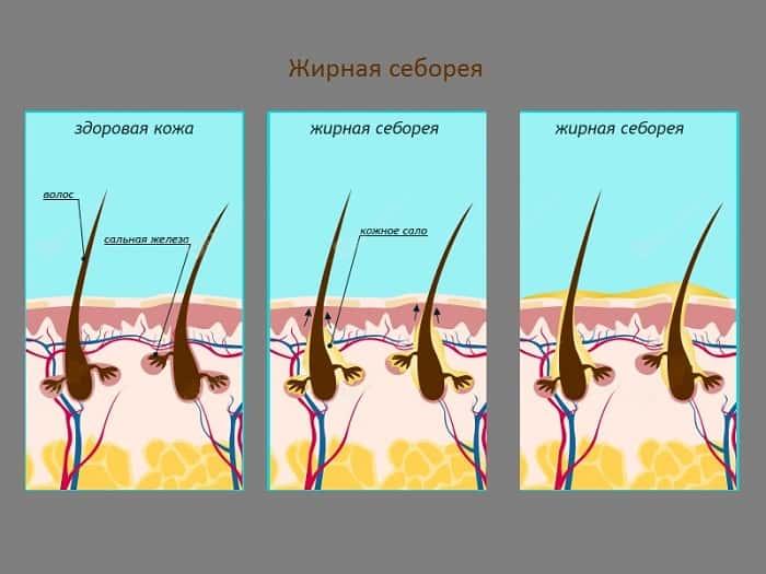 Схема жирной себореи