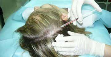 Лечение жирной себореи головы
