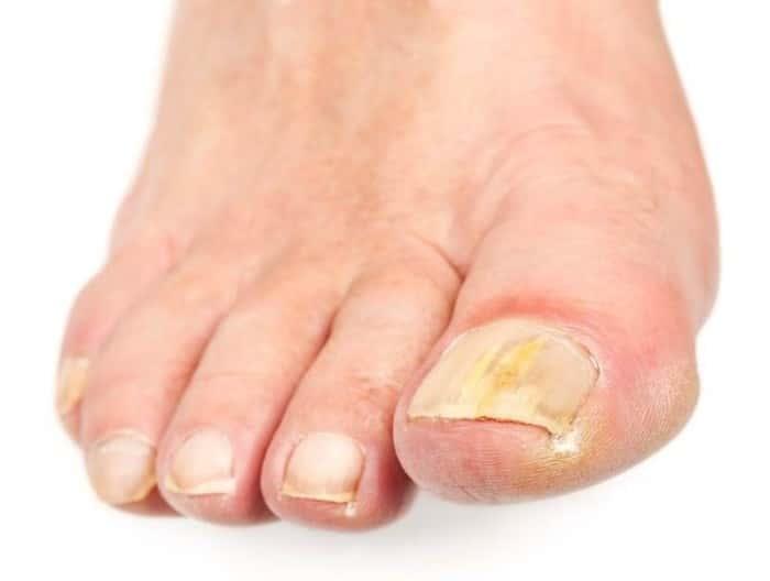 Грибок на одном ногте на ноге чем лечить