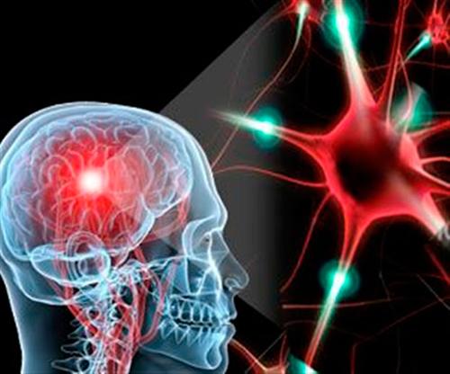 Череп, мозг, рассеянный склероз