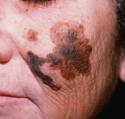 Меланоз кожи