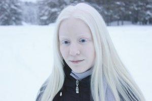 Альбинизм, девушка