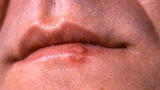 Герпес 6 типа у взрослых симптомы