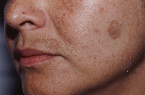 Старческая пигментация на лице