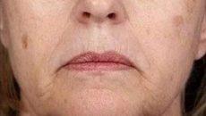Старческие пигментные пятна на лице как избавиться