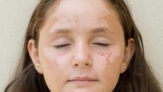 Белые пятна на лице у ребенка