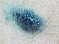 Клеточный голубой невус
