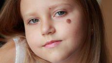 Меланома у детей