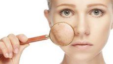 Народные средства от пигментных пятен на лице