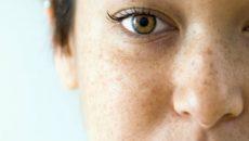 Пигментные пятна на лице при беременности