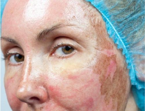 Пигментные пятна на лице у женщин