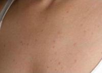 Сыпь на грудине у женщин