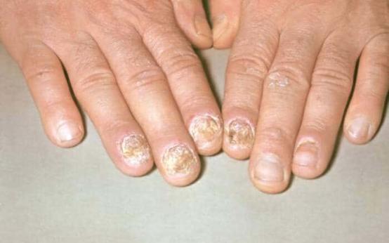 Псориаз ногтей на руках и ногах что делать?