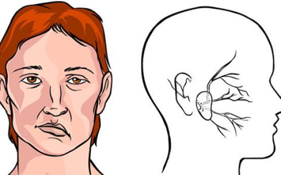 Что делать, если после инсульта парализовало правую сторону?