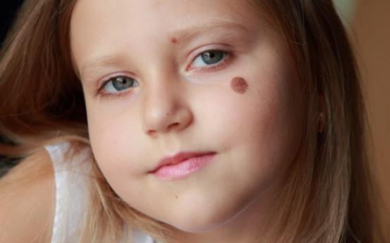 Может ли у ребенка появиться меланома