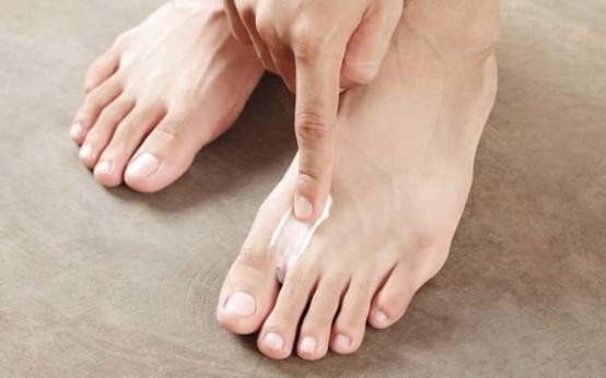 Популярные препараты для лечения грибка между пальцев ног