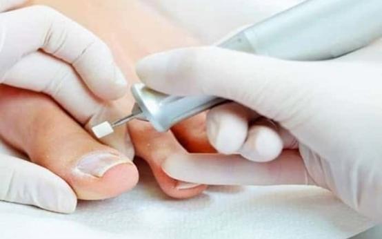 Как проводится аппаратная чистка ногтей от грибка